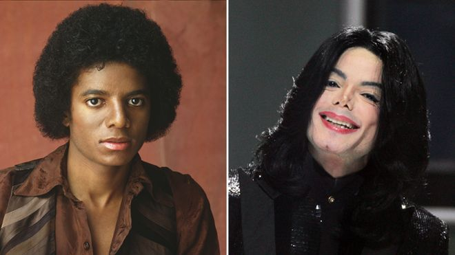 Before and After Photos of Michael Jackson