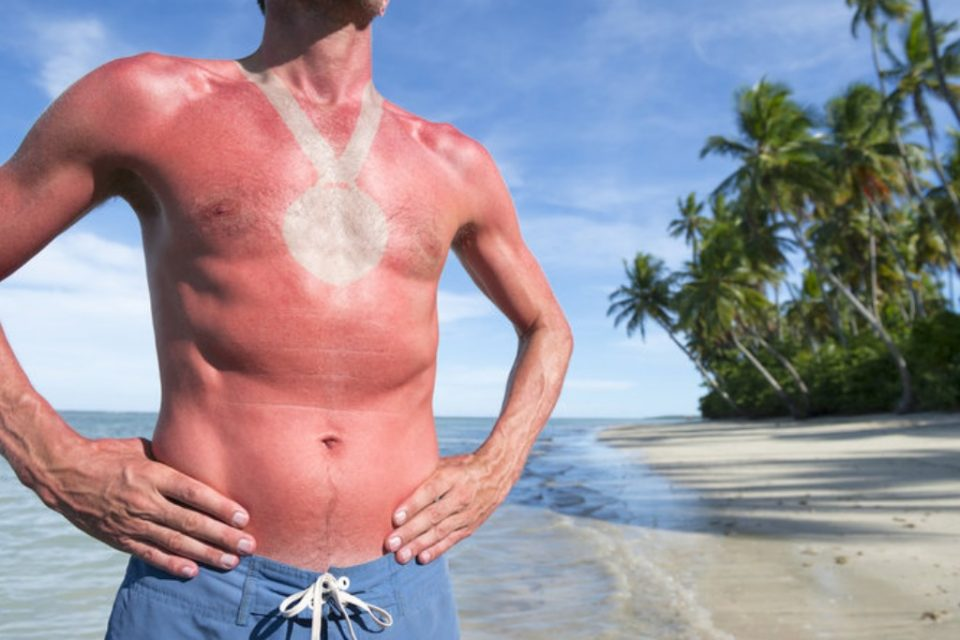 What Sunburn Actually Does to your Body