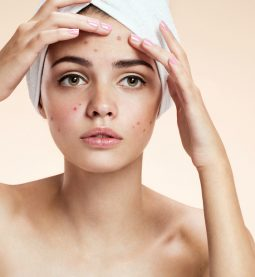 These Are The Best Remedies To Get Rid of Acne