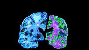 Weird diseases, Alzheimer's